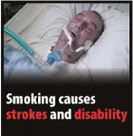 EU 2016 Health Effects stroke - stroke, disability, lived experience