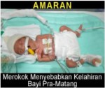 Malaysia 2014 ETS Baby - premature birth, targets parents (front)