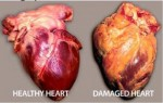 Australia 2011 - Health Effects Heart - diseased organ, heart disease