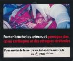France2011bHealthEffectsArteries-livedexperience_cloggedarteries_heartattack_stroke_graphic