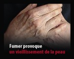 France 2011 Health Effects wrinkles - lived experience, wrinkles