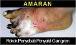 Malaysia 2008 Health Effects Vascular System - gangrene, lived experience (front)
